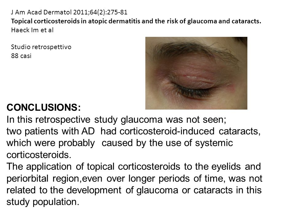 In this retrospective study glaucoma was not seen;