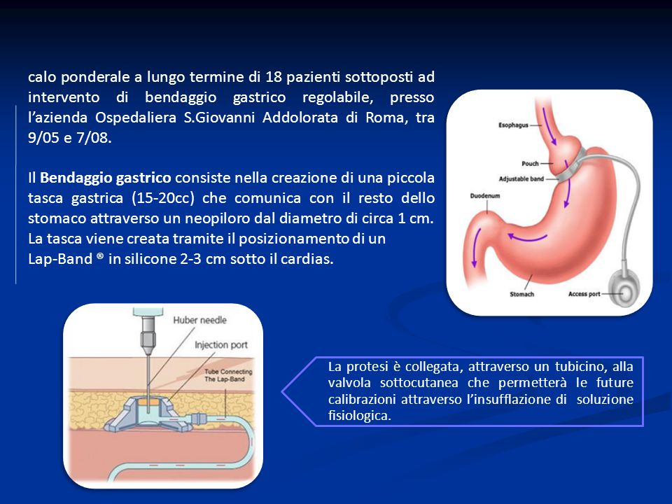 Lap-Band ® in silicone 2-3 cm sotto il cardias.