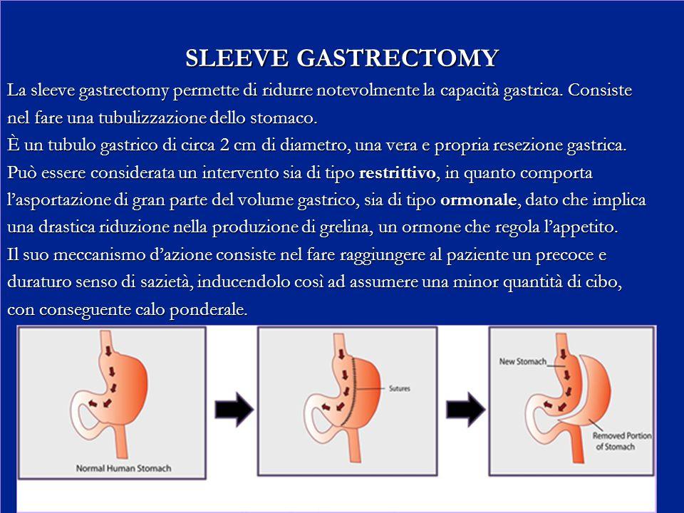 SLEEVE GASTRECTOMY La sleeve gastrectomy permette di ridurre notevolmente la capacità gastrica. Consiste.