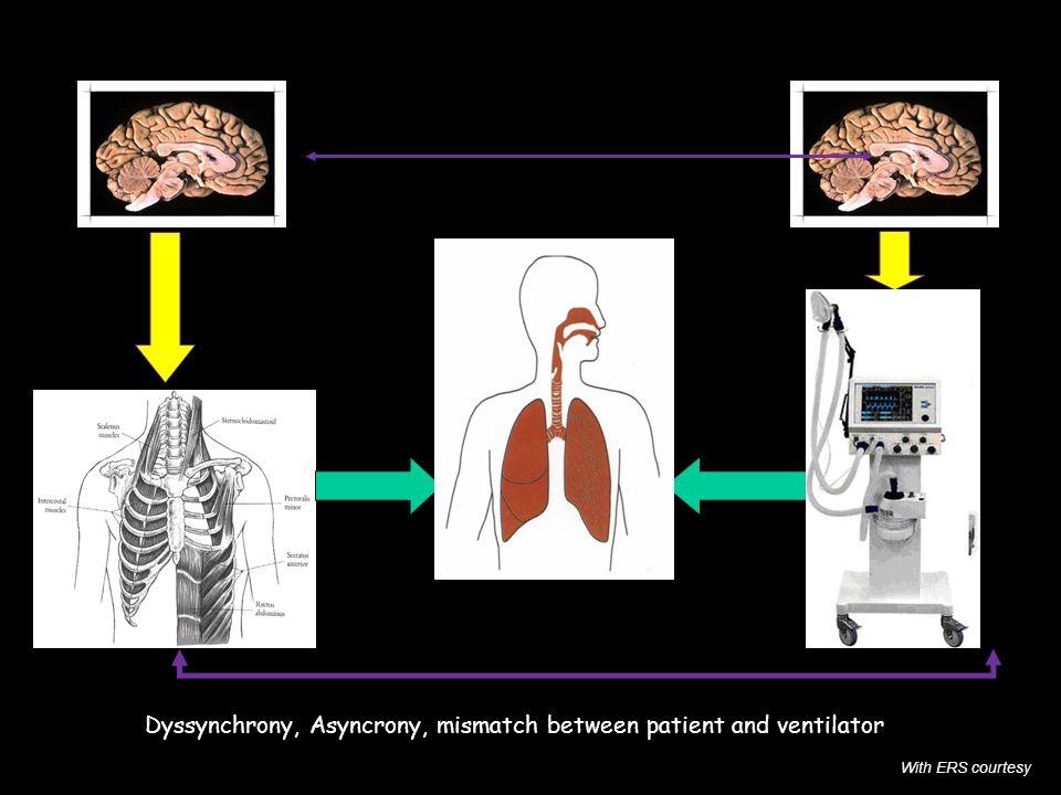 Patient brain Physician brain Pmus Paw