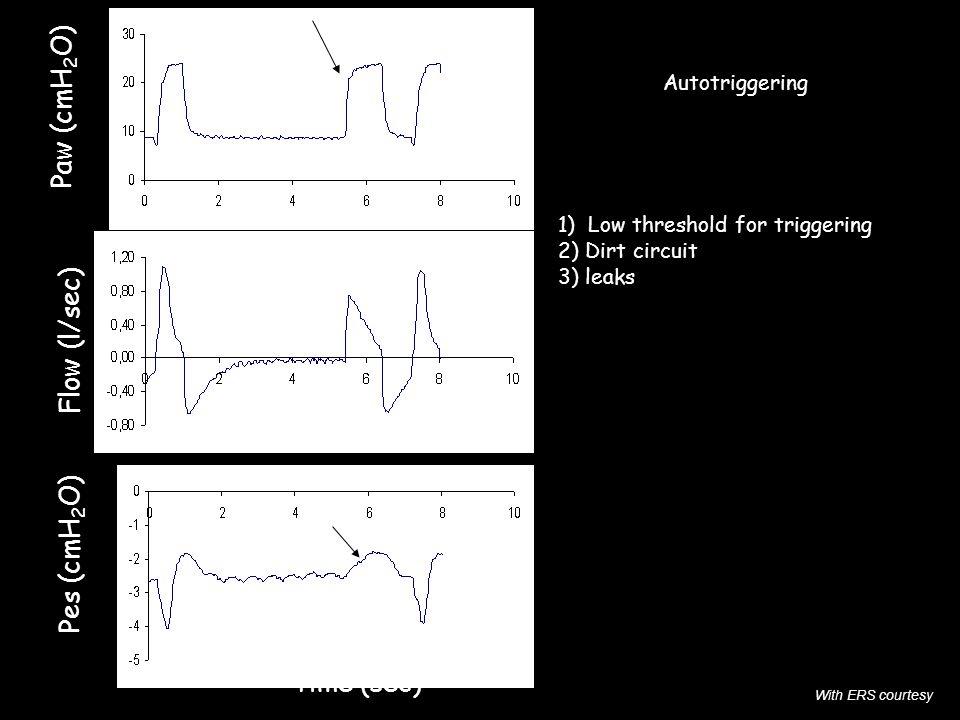 Paw (cmH2O) Flow (l/sec) Pes (cmH2O) Time (sec) Autotriggering