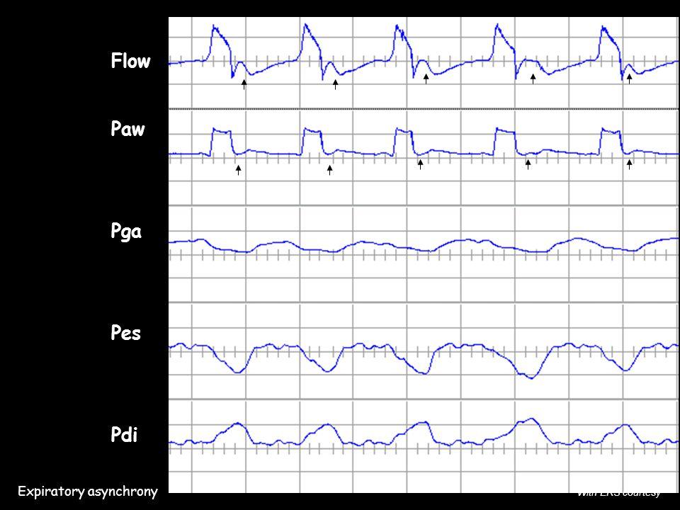 Flow Paw Pga Pes Pdi Expiratory asynchrony