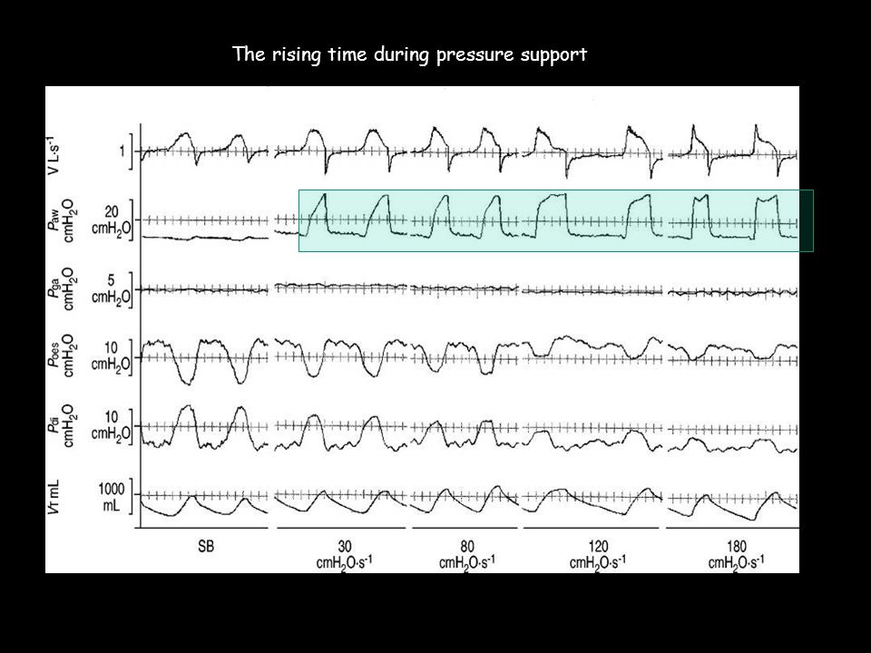 The rising time during pressure support
