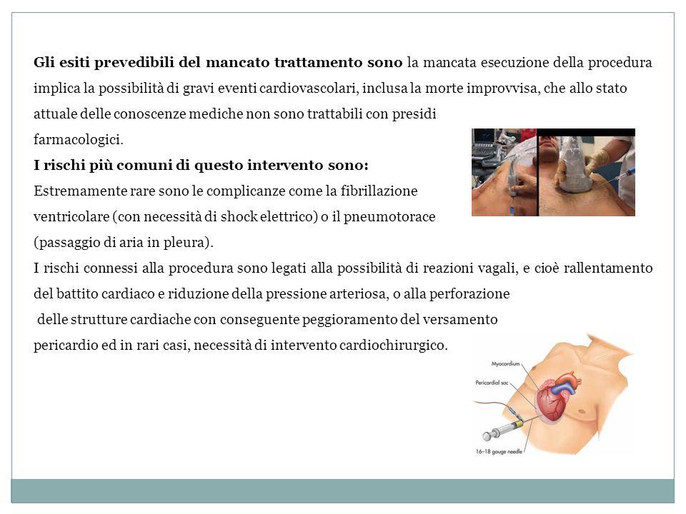 Gli esiti prevedibili del mancato trattamento sono la mancata esecuzione della procedura implica la possibilità di gravi eventi cardiovascolari, inclusa la morte improvvisa, che allo stato
