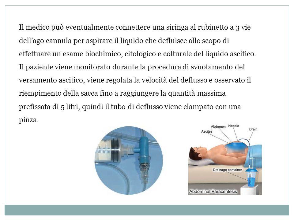Il medico può eventualmente connettere una siringa al rubinetto a 3 vie dell'ago cannula per aspirare il liquido che defluisce allo scopo di effettuare un esame biochimico, citologico e colturale del liquido ascitico.