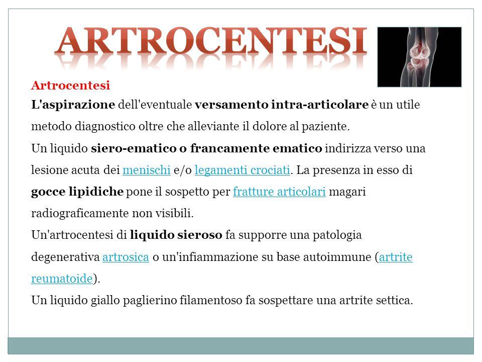 ARTROCENTESI Artrocentesi