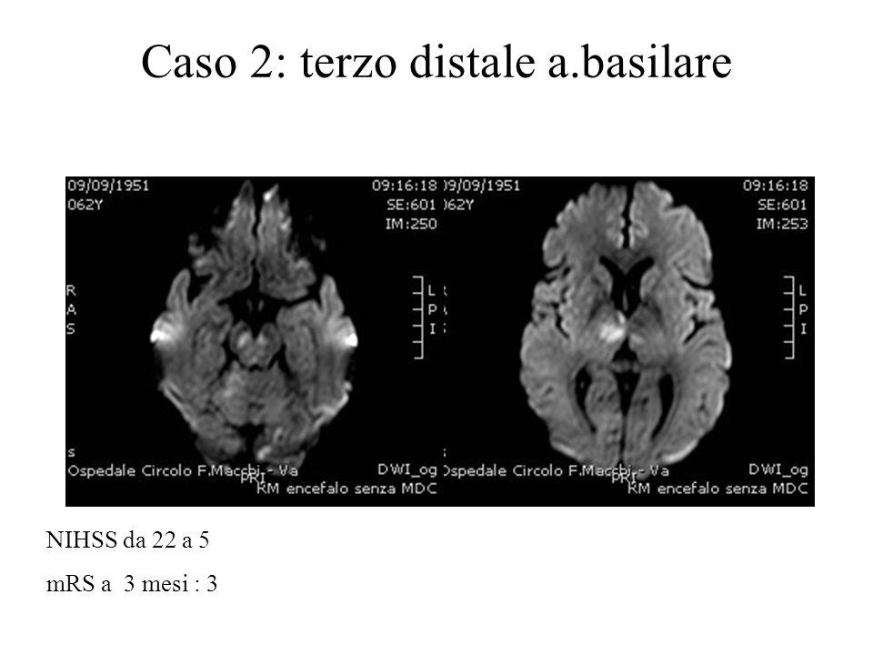 Caso 2: terzo distale a.basilare