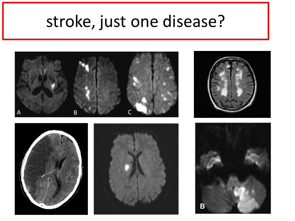 stroke, just one disease