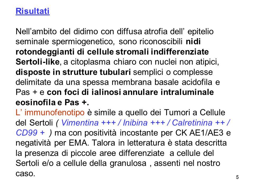 Risultati Nell'ambito del didimo con diffusa atrofia dell' epitelio seminale spermiogenetico, sono riconoscibili nidi rotondeggianti di cellule stromali indifferenziate Sertoli-like, a citoplasma chiaro con nuclei non atipici, disposte in strutture tubulari semplici o complesse delimitate da una spessa membrana basale acidofila e Pas + e con foci di ialinosi annulare intraluminale eosinofila e Pas +.