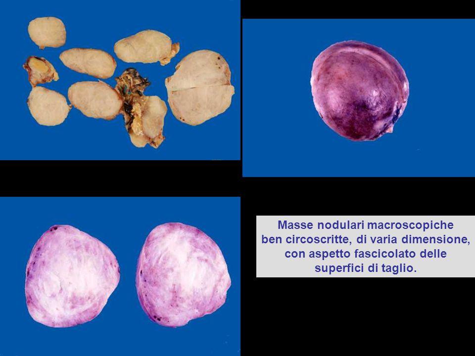 Masse nodulari macroscopiche