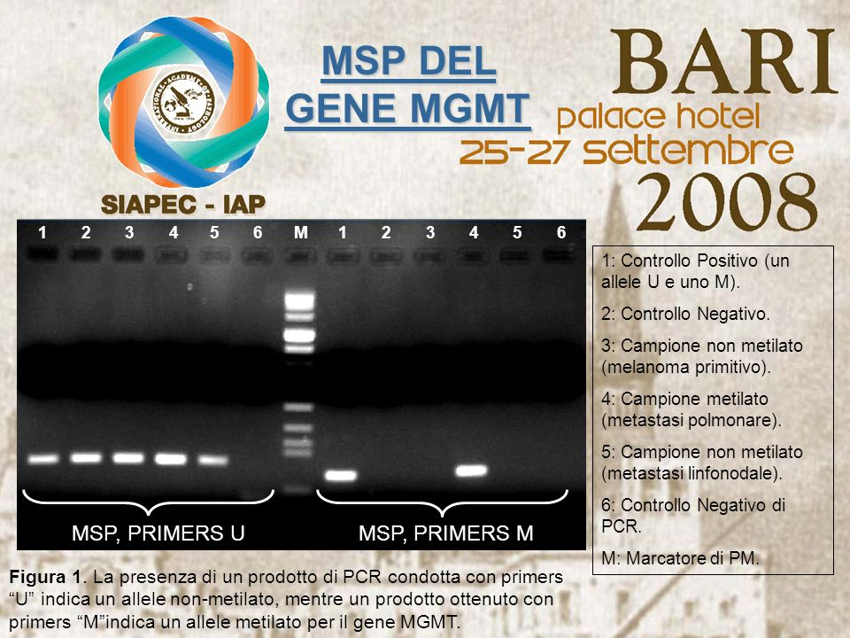 MSP DEL GENE MGMT MSP, PRIMERS U MSP, PRIMERS M