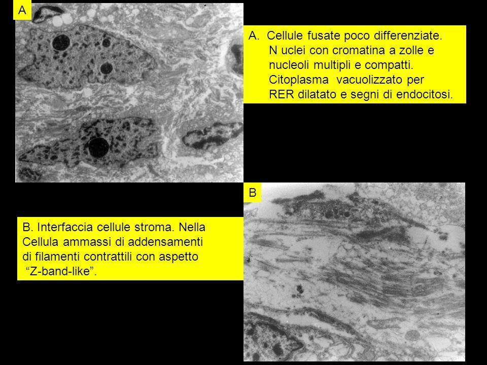 A B. Cellule fusate poco differenziate. N uclei con cromatina a zolle e. nucleoli multipli e compatti.