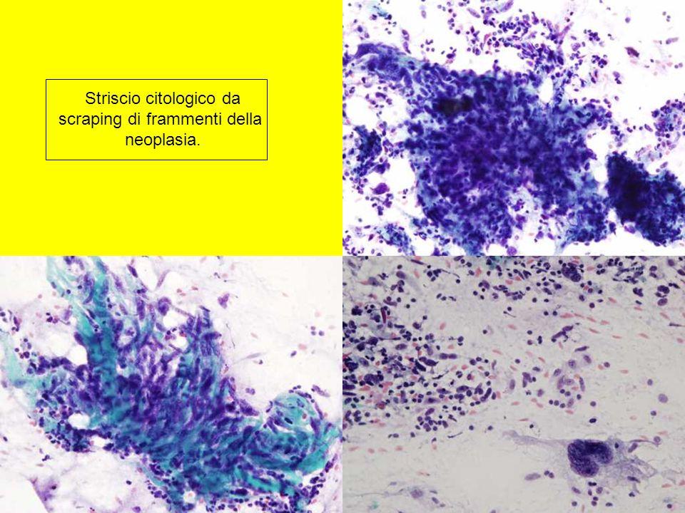 Striscio citologico da scraping di frammenti della neoplasia.