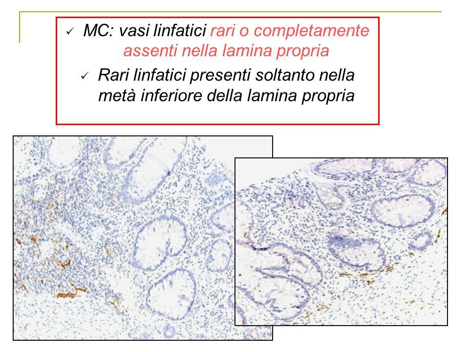 MC: vasi linfatici rari o completamente assenti nella lamina propria
