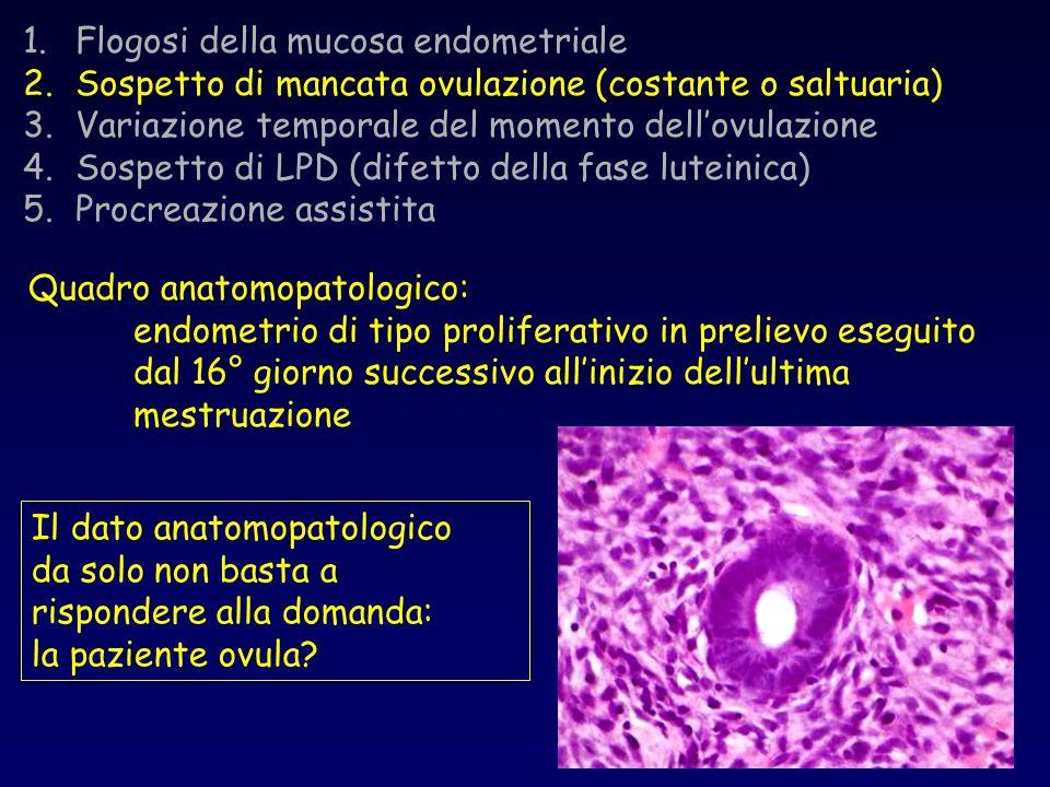 Flogosi della mucosa endometriale
