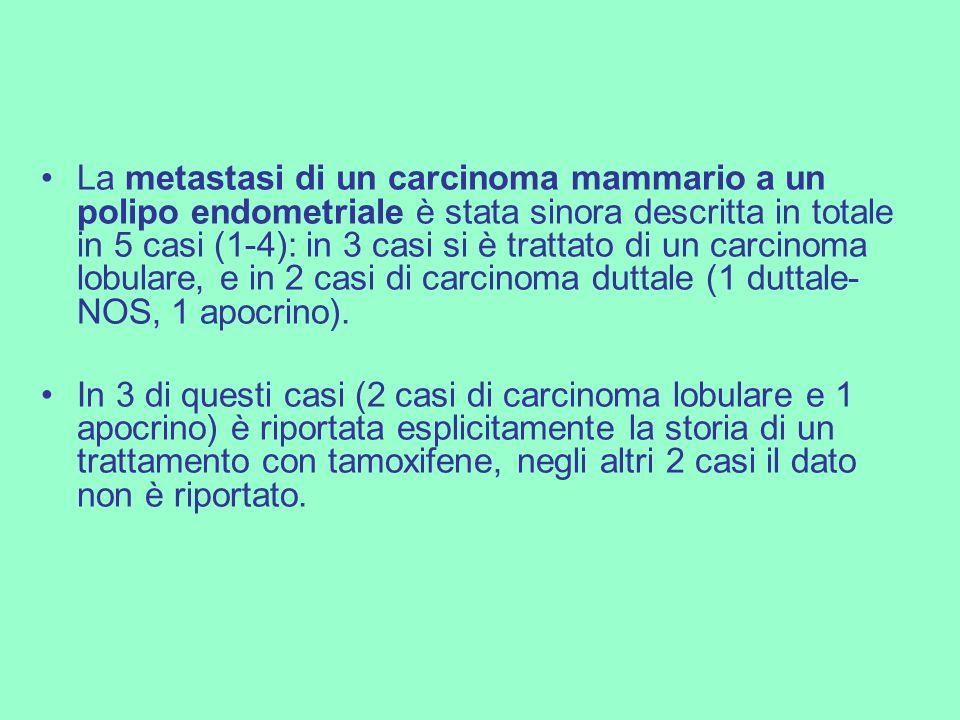 La metastasi di un carcinoma mammario a un polipo endometriale è stata sinora descritta in totale in 5 casi (1-4): in 3 casi si è trattato di un carcinoma lobulare, e in 2 casi di carcinoma duttale (1 duttale-NOS, 1 apocrino).