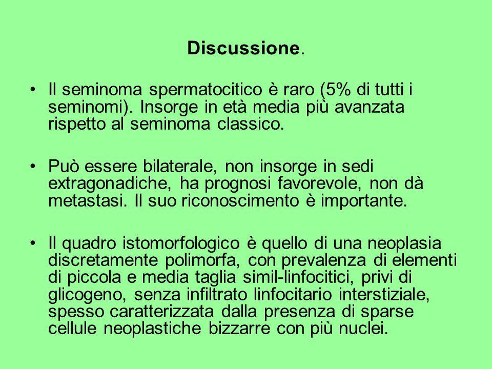 Discussione. Il seminoma spermatocitico è raro (5% di tutti i seminomi). Insorge in età media più avanzata rispetto al seminoma classico.