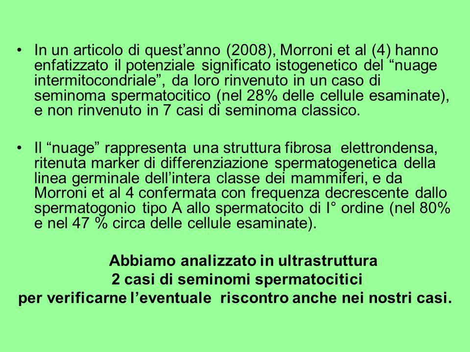 2 casi di seminomi spermatocitici