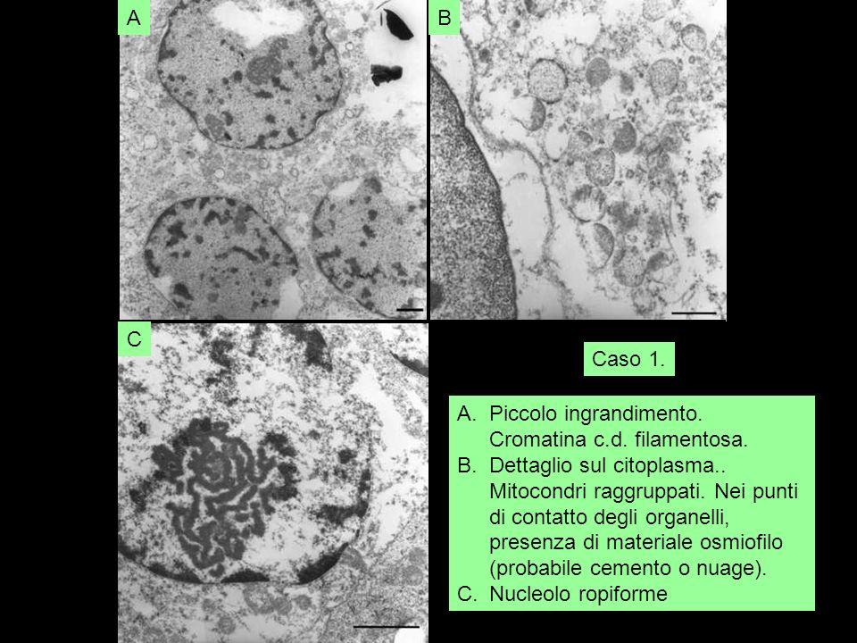 A B. C. Piccolo ingrandimento. Cromatina c.d. filamentosa.