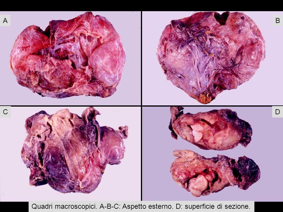 Quadri macroscopici. A-B-C: Aspetto esterno. D: superficie di sezione.
