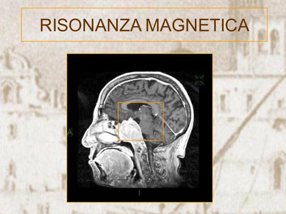 RISONANZA MAGNETICA