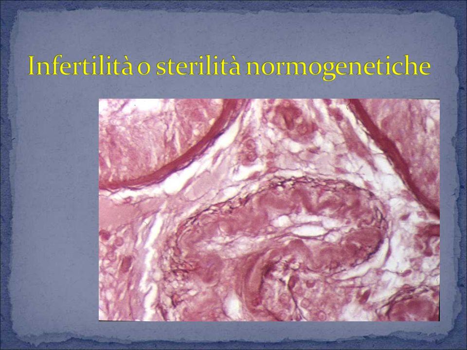 Infertilità o sterilità normogenetiche