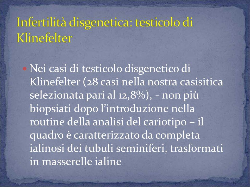 Nei casi di testicolo disgenetico di Klinefelter (28 casi nella nostra casisitica selezionata pari al 12,8%), - non più biopsiati dopo l'introduzione nella routine della analisi del cariotipo – il quadro è caratterizzato da completa ialinosi dei tubuli seminiferi, trasformati in masserelle ialine