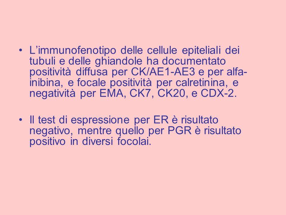 L'immunofenotipo delle cellule epiteliali dei tubuli e delle ghiandole ha documentato positività diffusa per CK/AE1-AE3 e per alfa-inibina, e focale positività per calretinina, e negatività per EMA, CK7, CK20, e CDX-2.