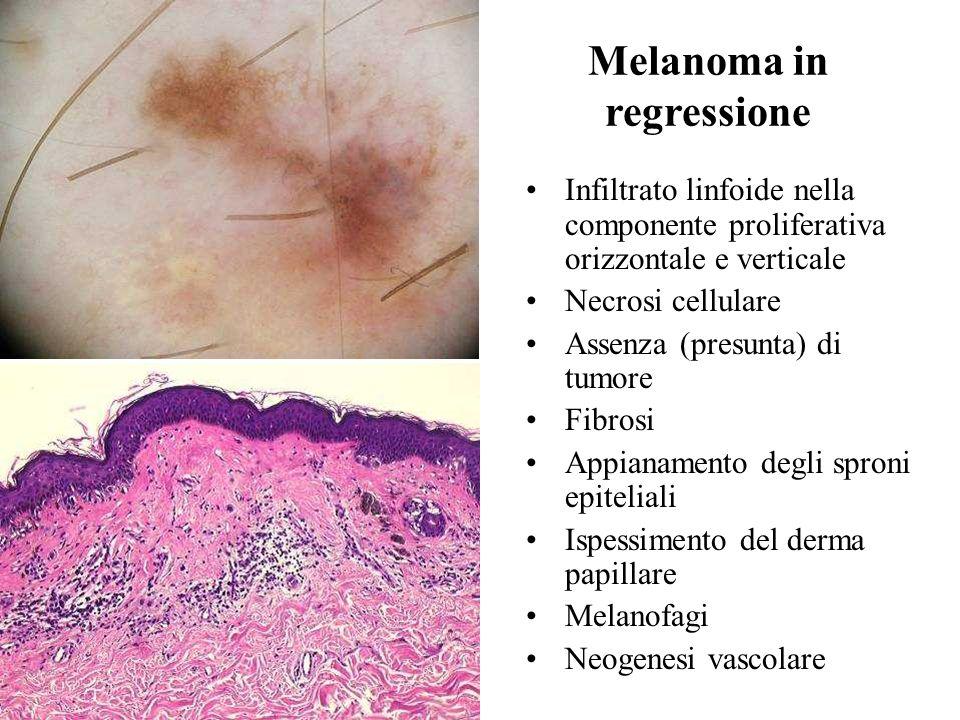 Melanoma in regressione