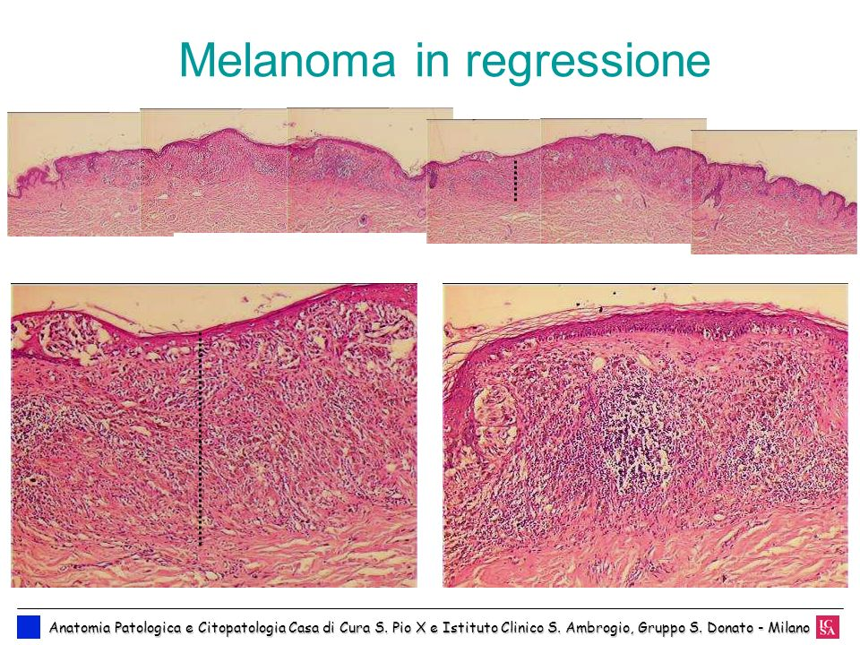 Melanoma in regressione