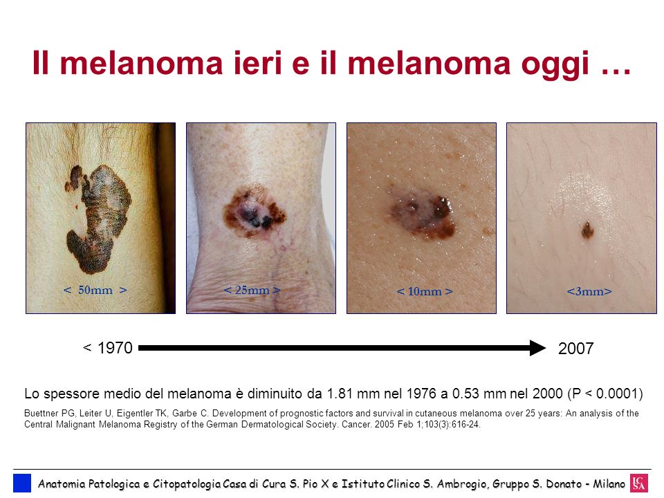 Il melanoma ieri e il melanoma oggi …
