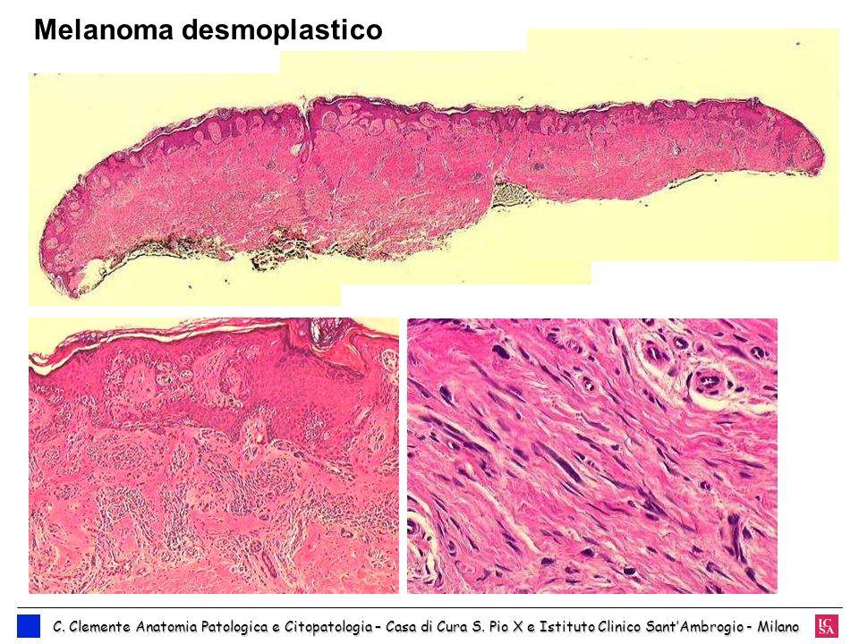 Melanoma desmoplastico
