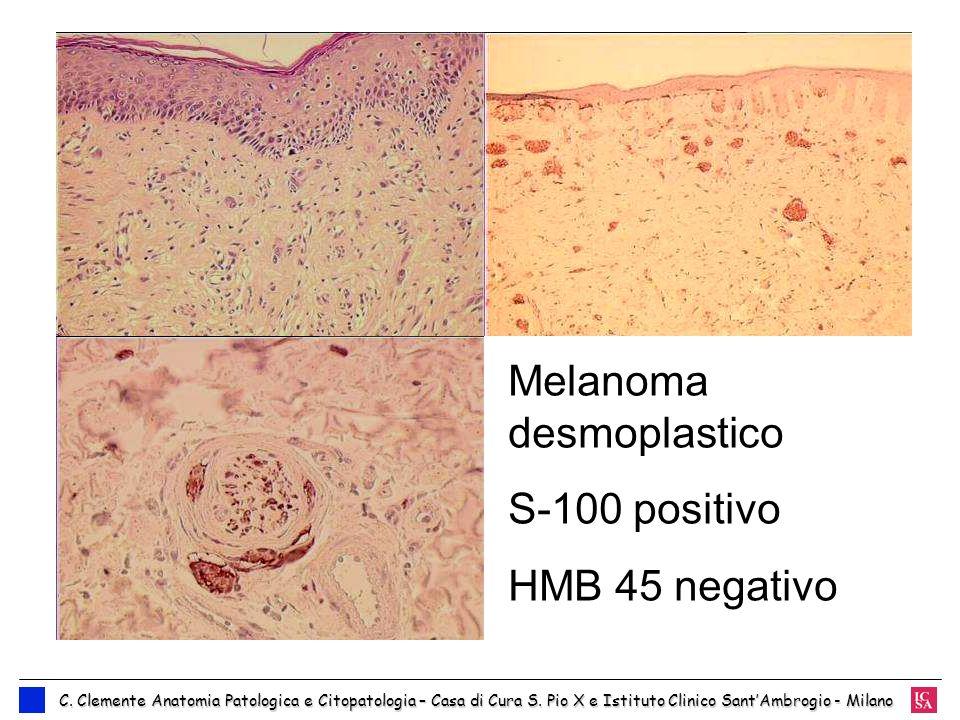 Melanoma desmoplastico S-100 positivo HMB 45 negativo