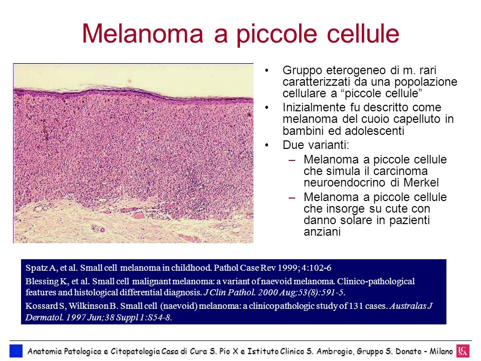 Melanoma a piccole cellule