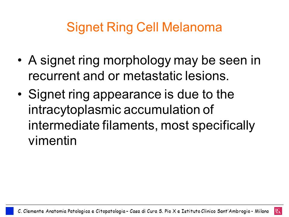 Signet Ring Cell Melanoma