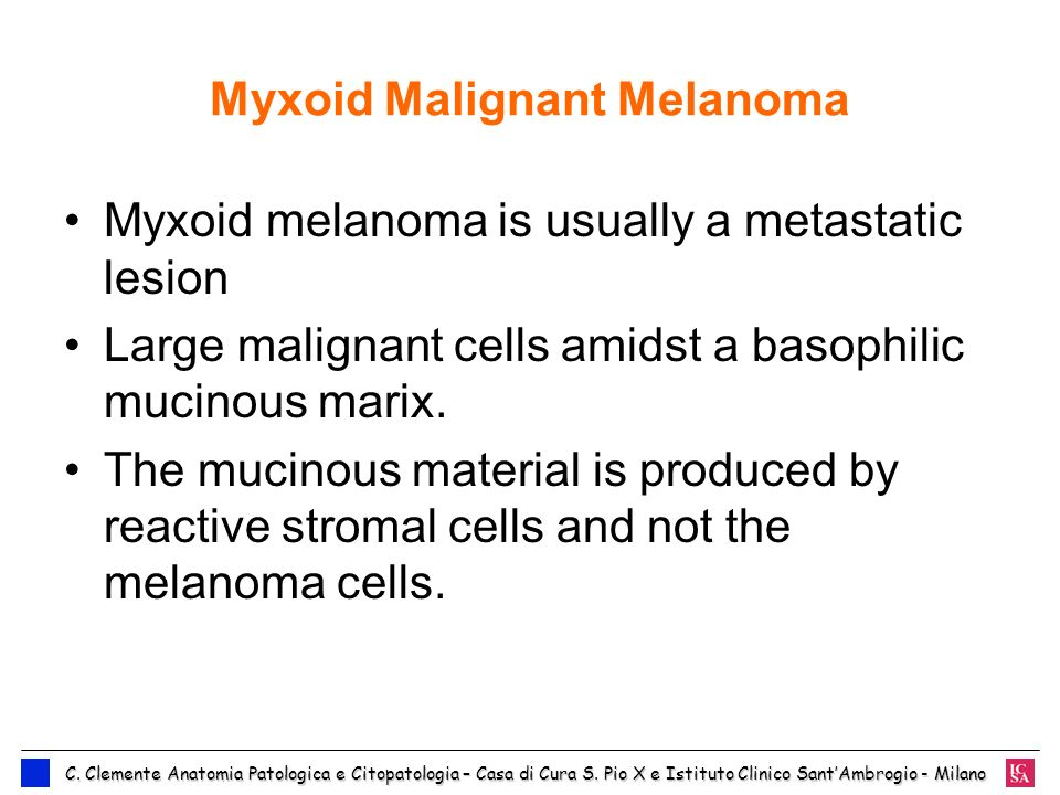 Myxoid Malignant Melanoma