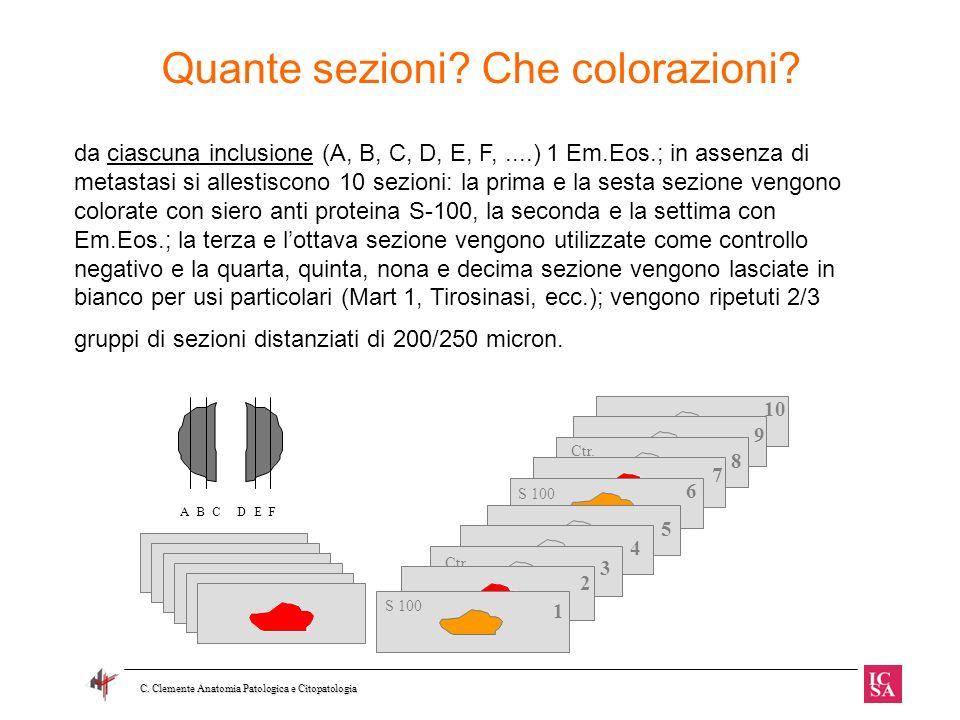 Quante sezioni Che colorazioni