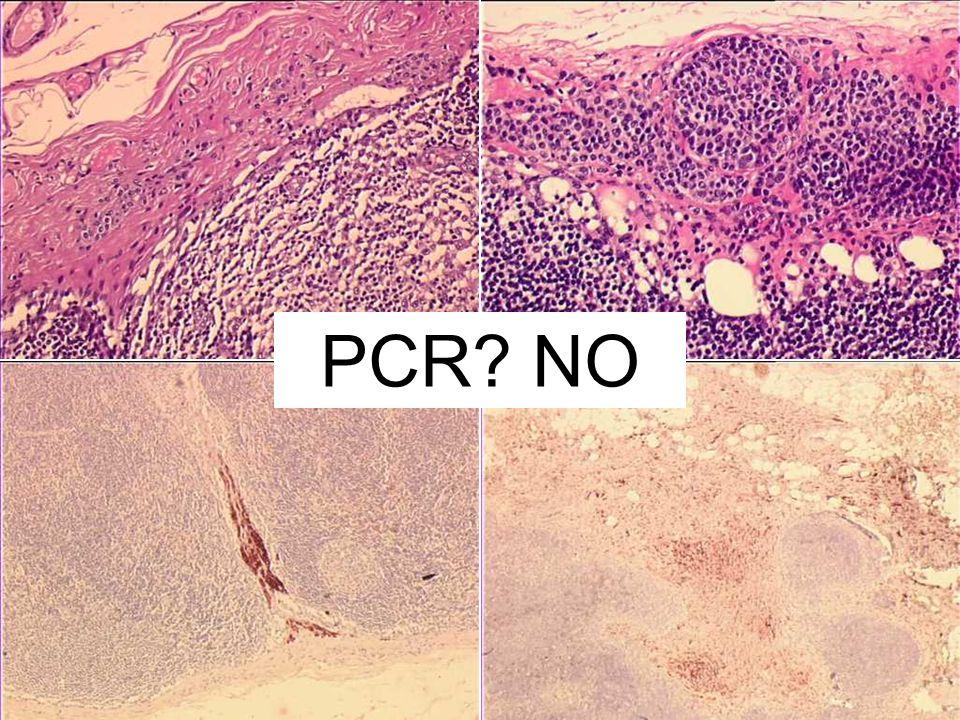 PCR NO