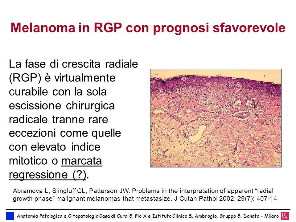 Melanoma in RGP con prognosi sfavorevole