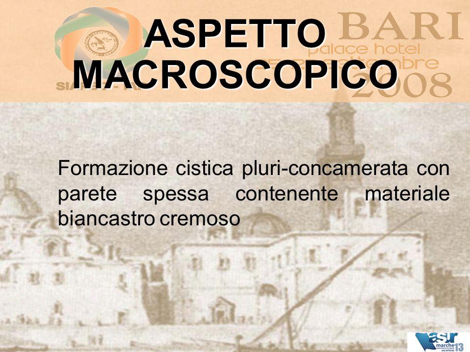 ASPETTO MACROSCOPICO Formazione cistica pluri-concamerata con parete spessa contenente materiale biancastro cremoso.