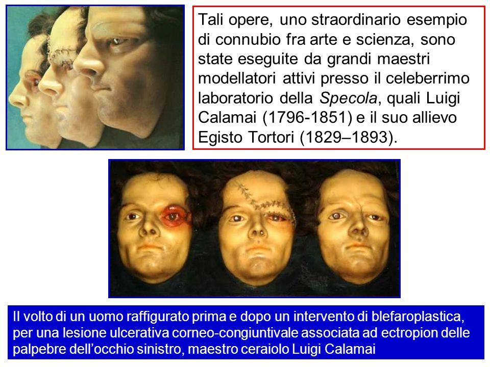 Tali opere, uno straordinario esempio di connubio fra arte e scienza, sono state eseguite da grandi maestri modellatori attivi presso il celeberrimo laboratorio della Specola, quali Luigi Calamai (1796-1851) e il suo allievo Egisto Tortori (1829–1893).