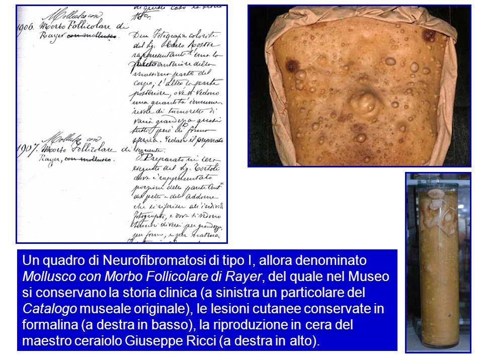 Un quadro di Neurofibromatosi di tipo I, allora denominato Mollusco con Morbo Follicolare di Rayer, del quale nel Museo si conservano la storia clinica (a sinistra un particolare del Catalogo museale originale), le lesioni cutanee conservate in formalina (a destra in basso), la riproduzione in cera del maestro ceraiolo Giuseppe Ricci (a destra in alto).