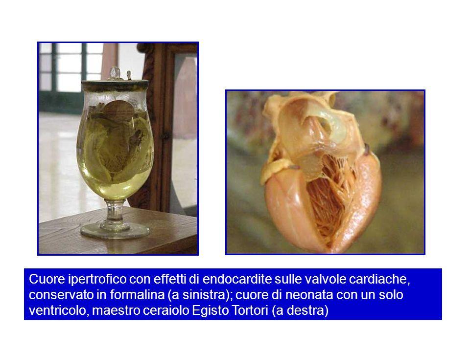 Cuore ipertrofico con effetti di endocardite sulle valvole cardiache, conservato in formalina (a sinistra); cuore di neonata con un solo ventricolo, maestro ceraiolo Egisto Tortori (a destra)