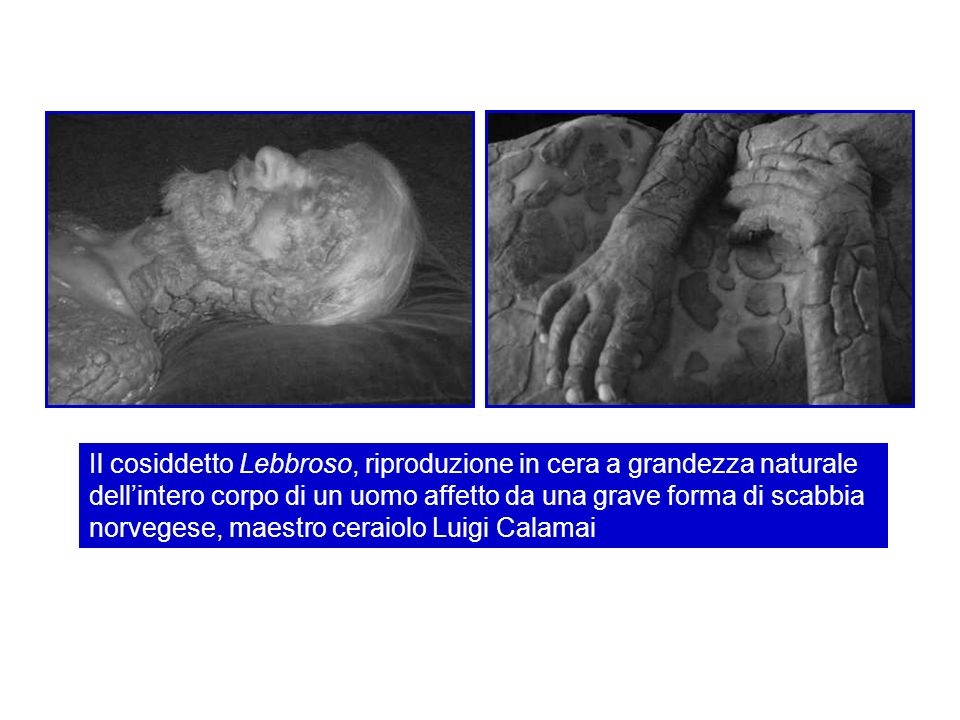 Il cosiddetto Lebbroso, riproduzione in cera a grandezza naturale dell'intero corpo di un uomo affetto da una grave forma di scabbia norvegese, maestro ceraiolo Luigi Calamai