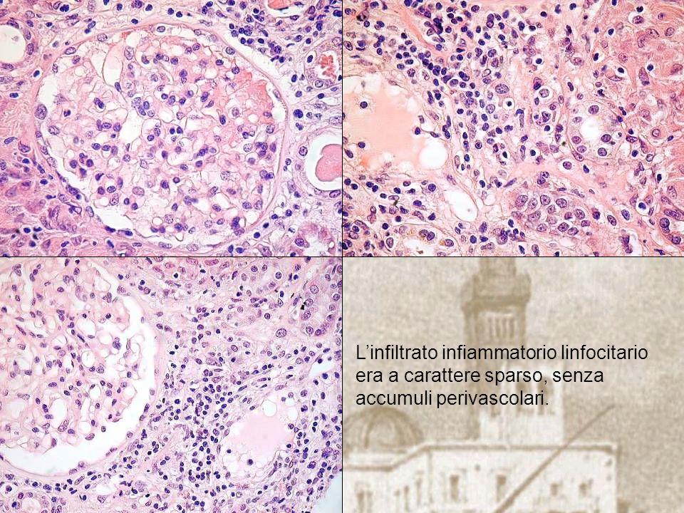 L'infiltrato infiammatorio linfocitario era a carattere sparso, senza accumuli perivascolari.