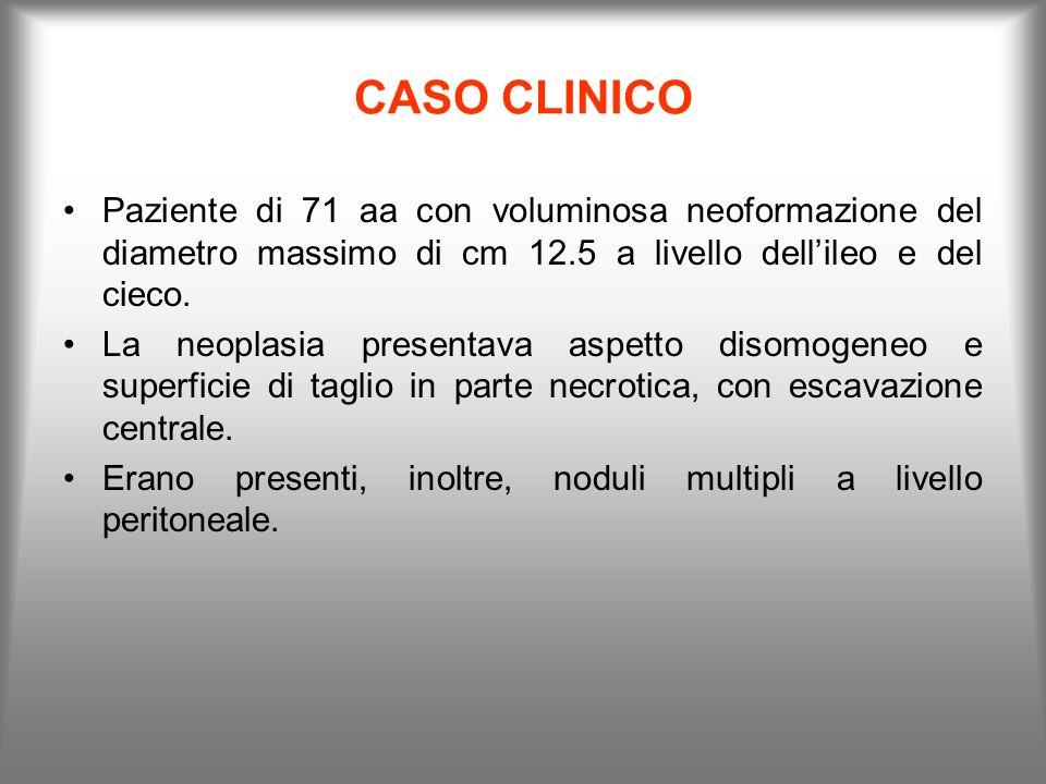 CASO CLINICOPaziente di 71 aa con voluminosa neoformazione del diametro massimo di cm 12.5 a livello dell'ileo e del cieco.