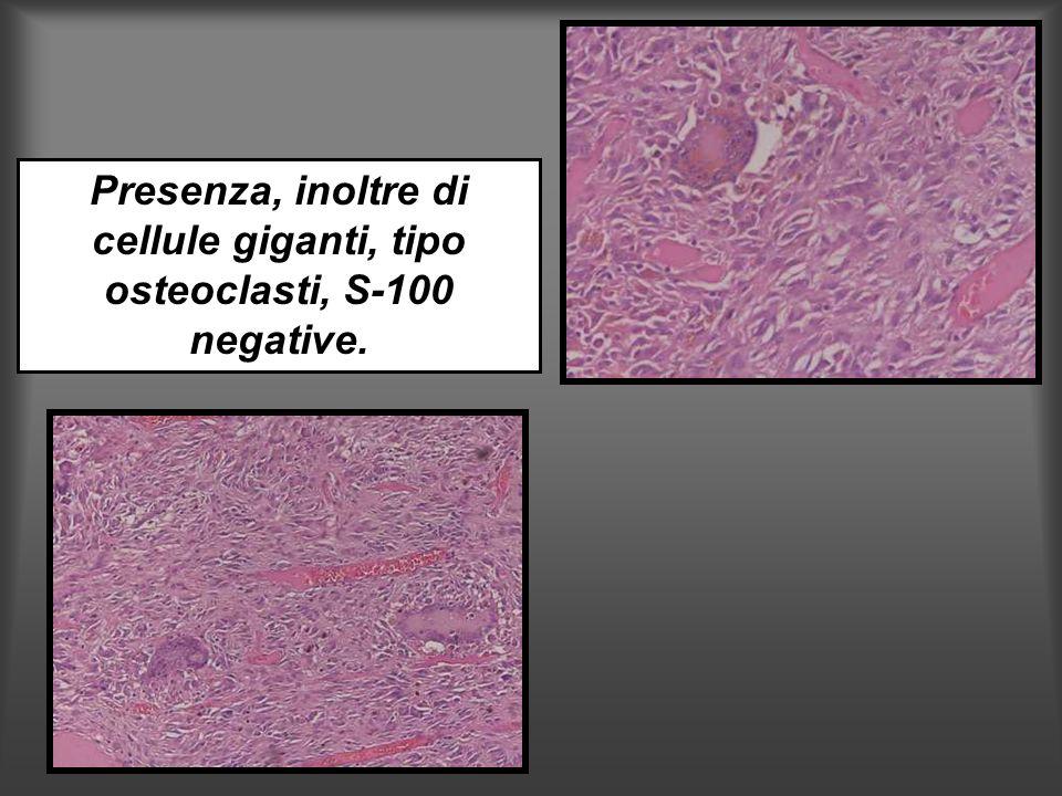 Presenza, inoltre di cellule giganti, tipo osteoclasti, S-100 negative.
