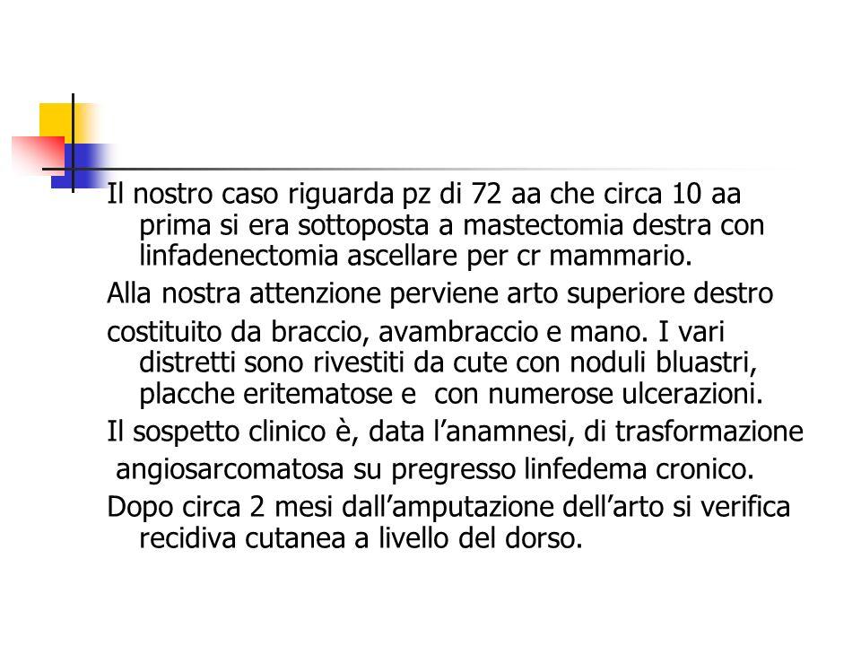 Il nostro caso riguarda pz di 72 aa che circa 10 aa prima si era sottoposta a mastectomia destra con linfadenectomia ascellare per cr mammario.