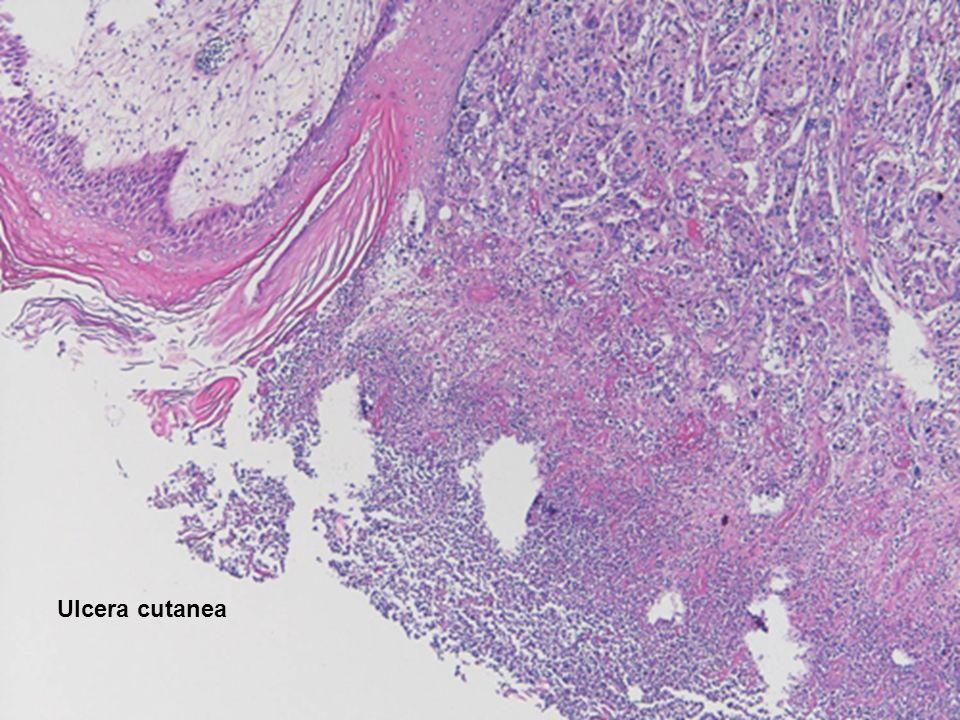 Ulcera cutanea Ulcera cutanea