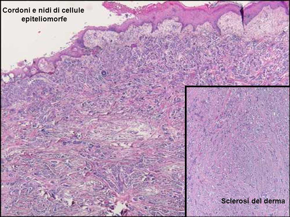 Cordoni e nidi di cellule